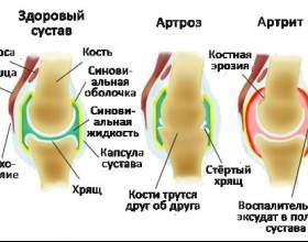 Артрит і артроз: в чому різниця? фото