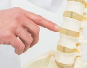 Що таке остеохондроз? Симптоми і лікування захворювання фото