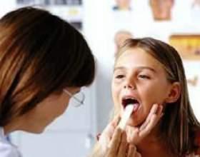 Інфекційний мононуклеоз у дітей і його лікування фото