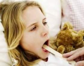 Історія хвороби ангіна і її симптоми фото