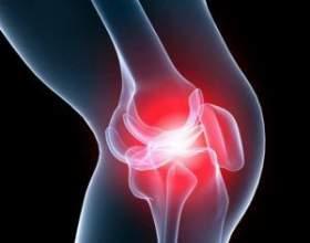 Як лікувати артроз колінного суглоба (гонартроз)? фото