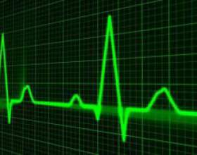 Класифікація інфаркту міокарда: що потрібно знати пацієнту? фото