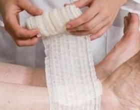 Лікування трофічних виразок нижніх кінцівок медикаментами фото