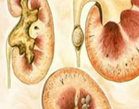 Сечокам`яна хвороба нирок: причини, симптоми, лікування фото