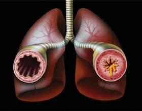 Народна медицина проти астми фото