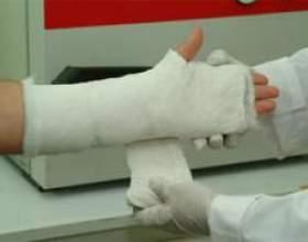Перелом руки променевої кістки фото