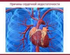 Причини серцевої недостатності фото