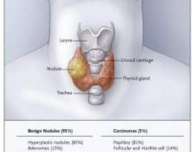 Різновид папілярний рак щитовидної залози - що це фото