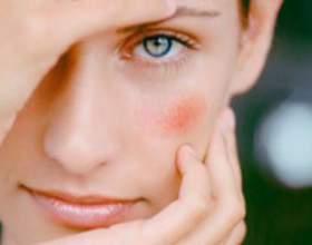 Способи лікування червоних сверблячих плям при алергії на обличчі фото