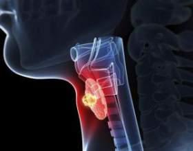 Тиреотоксичний криз: симптоми і лікування фото