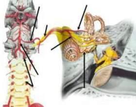 Унковертебральний артроз шийного відділу хребта фото