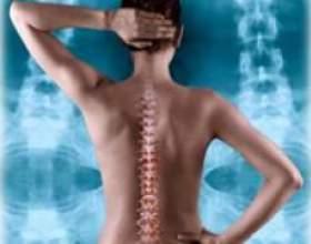Вправи при лікуванні остеохондрозу фото