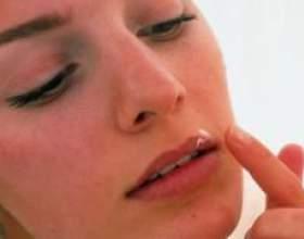 Віролекс - препарат від герпесу фото