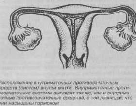 Внутрішньоматкові протизаплідні засоби фото