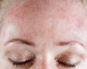 Можливі причини появи свербежу на обличчі і лікування фото